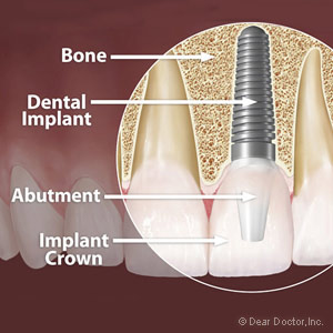 Metal Dental Implant