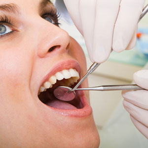Why Professional Teeth Cleanings are Necessary?