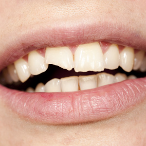 Restoring Chipped Tooth Options